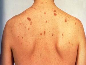 Hepatitis-B (1)